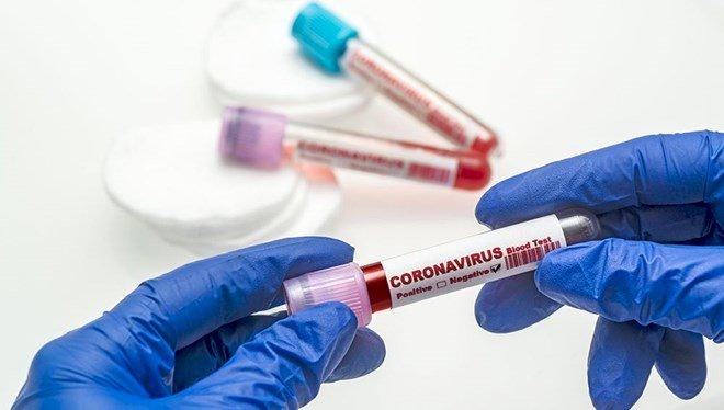 30 Mart 2021 corona virüs tablosu: 155 can kaybı, 37 bin 303 yeni vaka